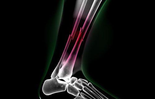 magnetoterapia tobillo